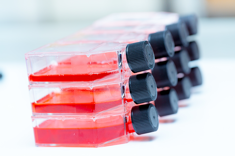 T-flasks with cell culture medium